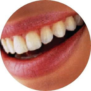 dental care in ayurveda